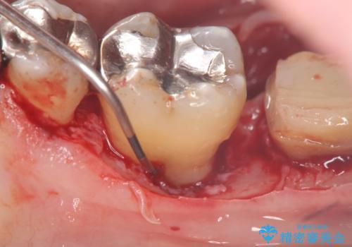 [大臼歯分岐部病変] ブリッジによる咬合機能回復の治療中
