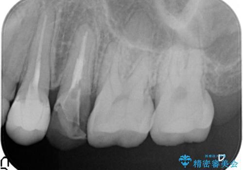 歯肉の中までの深い虫歯 部分矯正後のセラミック治療の治療前