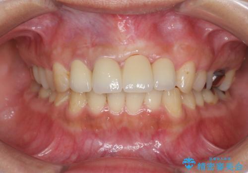 不良インプラントの除去・骨造成・歯肉移植・前歯審美セラミックブリッジ製作の治療後