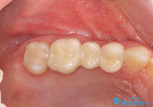 [深い虫歯] 根管治療・歯周外科治療を行い歯を保存するの症例 治療後