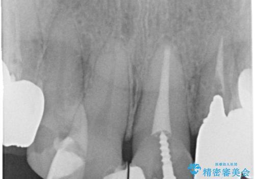 セラミックと矯正を併用してきれいな前歯への治療前