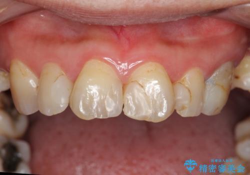 前歯の虫歯 つぎはぎの歯をセラミックにの治療前