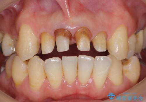 歯茎の黒ずみがきになる 前歯の見た目を改善したいの治療中