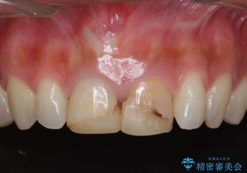 短期集中  前歯審美治療の症例 治療前