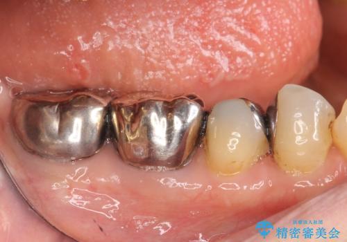 オールセラミッククラウン PGA(ゴールド)クラウン 古い銀歯の治療の治療前