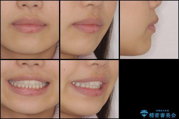 デコボコで飛び出した前歯をきれいに インビザラインによる矯正治療の治療後(顔貌)