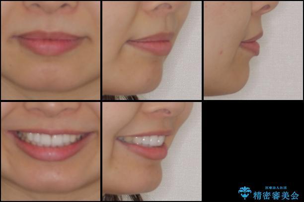 口が閉じにくい 1本飛び出した前歯の矯正治療の治療後(顔貌)