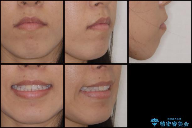 前歯の叢生を治したい インビザラインによる矯正治療の治療後(顔貌)