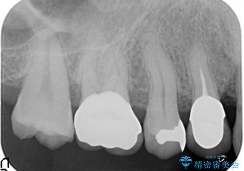 セラミッククラウンによるむし歯治療の治療後
