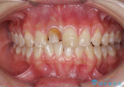 前歯をきれいにしたい ジルコニアクラウンによる審美治療の治療中