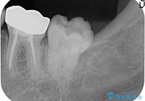 [金属の詰め物内部にむし歯] 奥歯のセラミックインレーの治療前