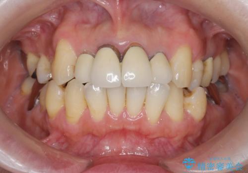 歯茎の黒ずみがきになる 前歯の見た目を改善したいの治療前