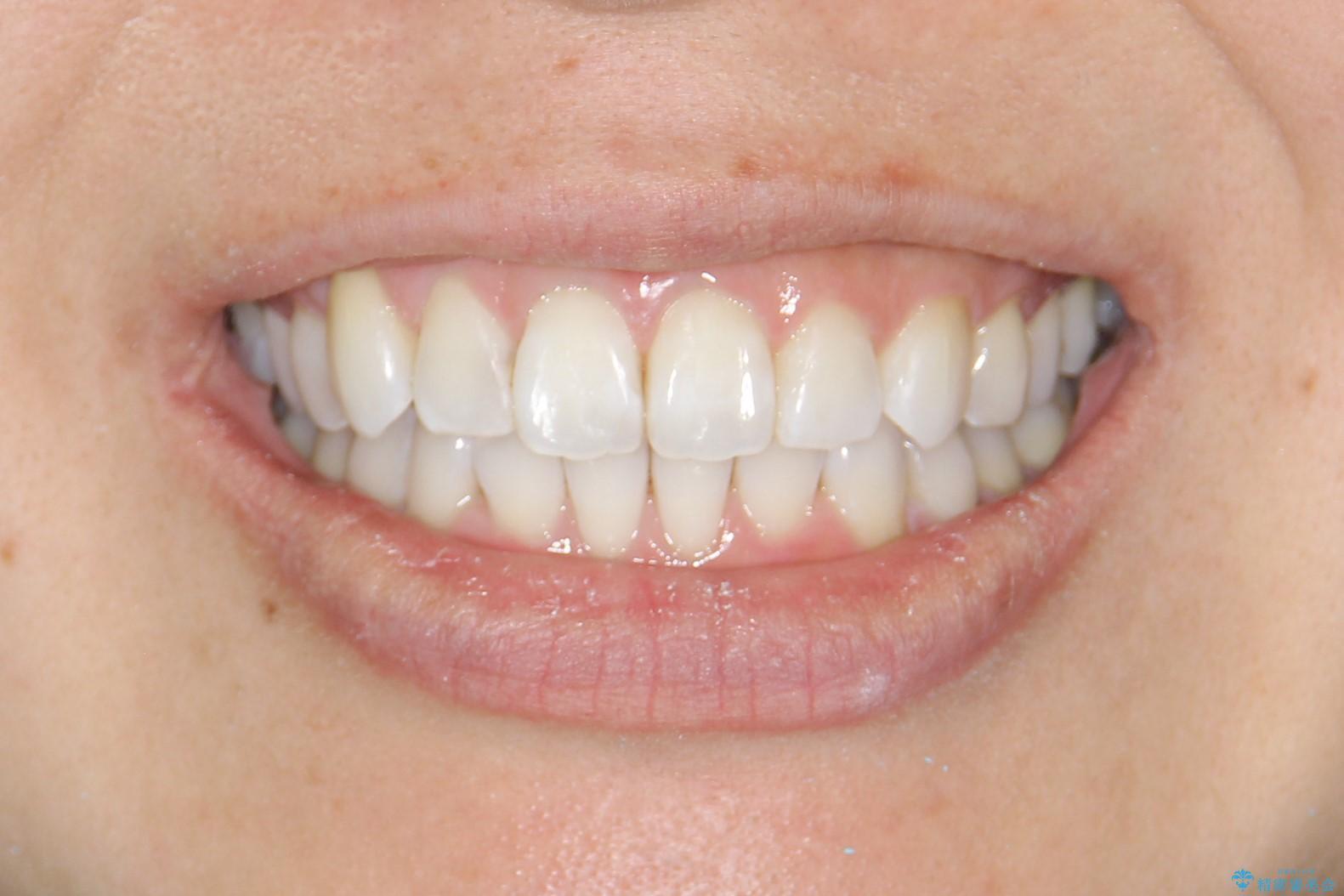 抜歯せずに八重歯のマウスピース矯正の治療後(顔貌)