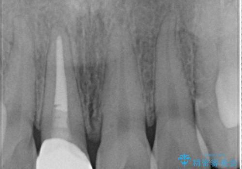 変色した歯をセラミックにしたい 歯自体が変色している場合の参考用2の治療後