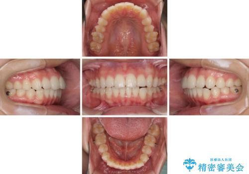 デコボコで飛び出した前歯をきれいに インビザラインによる矯正治療の治療中