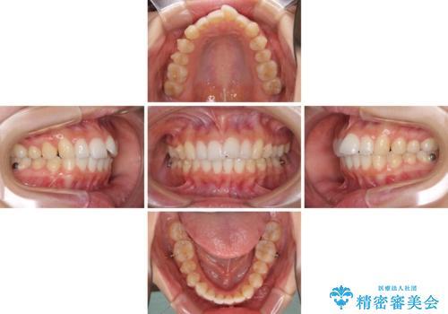 口が閉じにくい 1本飛び出した前歯の矯正治療の治療中