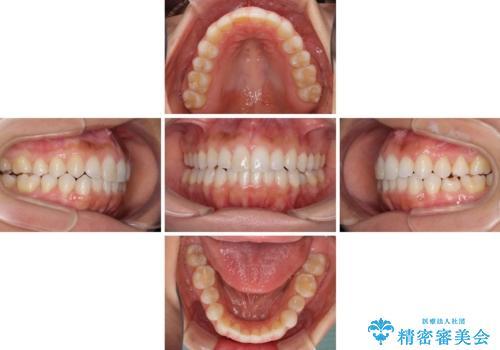 前歯の叢生を治したい インビザラインによる矯正治療の治療中