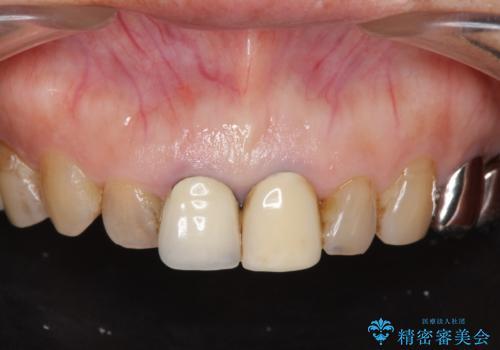 前歯の審美改善の治療前