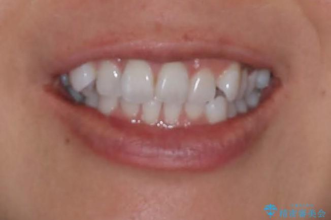 抜歯せずに八重歯のマウスピース矯正の治療前(顔貌)