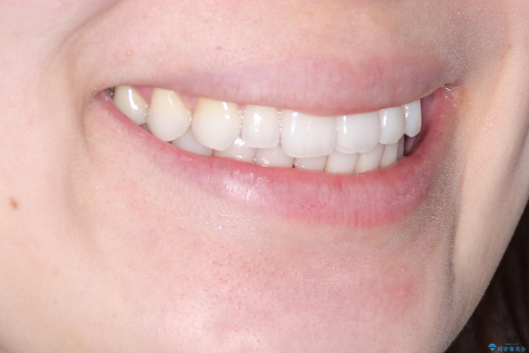 インビザラインで出っ歯を改善する 抜歯をしないinvisalign治療の治療後(顔貌)
