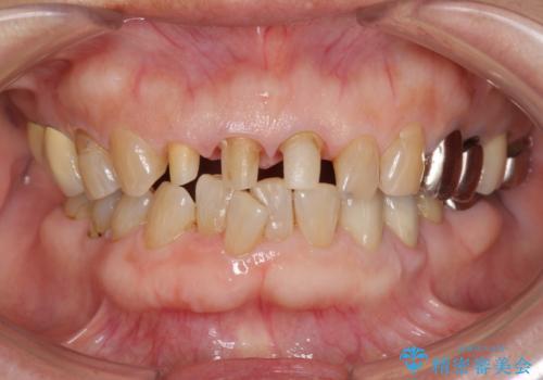 前歯の審美改善の治療中