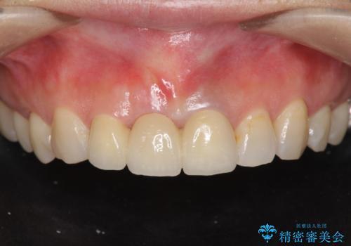[ 前歯が割れた ] ブリッジによる審美回復治療の症例 治療後