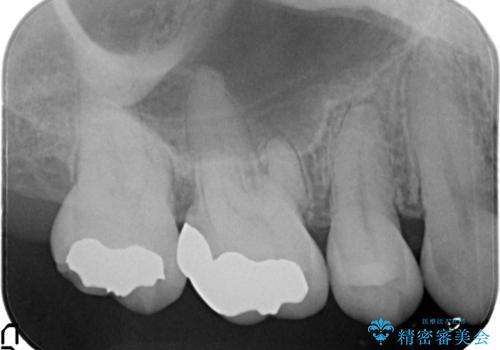 むし歯の治療。 ゴールドインレーによる修復の治療後