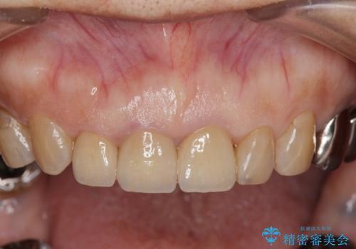 前歯の審美改善の治療後
