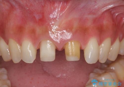 短期集中  前歯審美治療の治療中