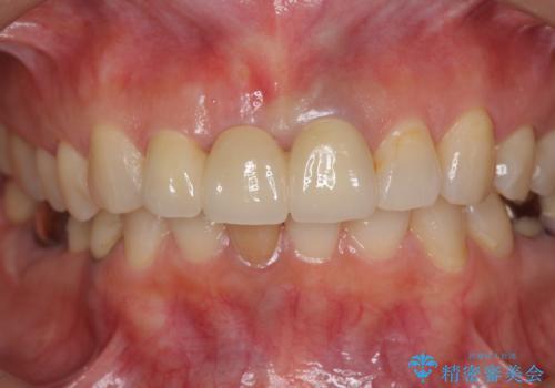 [ 前歯が割れた ] ブリッジによる審美回復治療の治療後