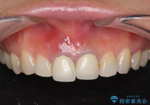 [ 前歯が割れた ] ブリッジによる審美回復治療の症例 治療前