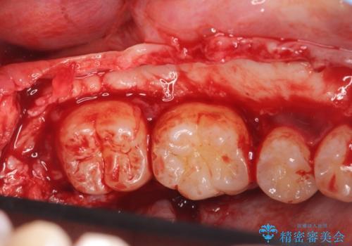 [ 下顎骨隆起切除術 ] 骨が張り出して話しづらいの治療中