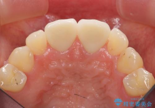 短期集中  前歯審美治療の治療後