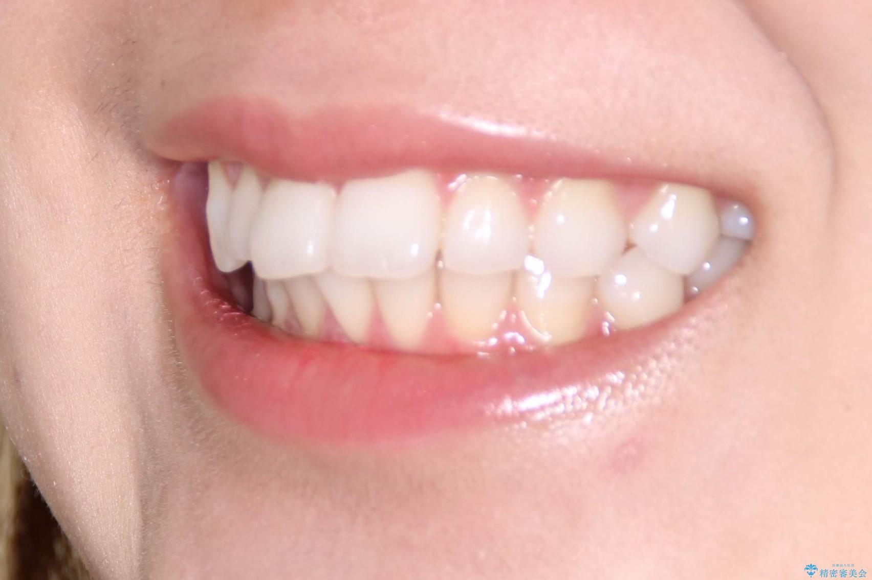 インビザラインで出っ歯を改善する 抜歯をしないinvisalign治療の治療前(顔貌)