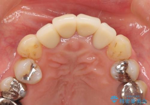 歯茎の黒ずみがきになる 前歯の見た目を改善したいの治療後