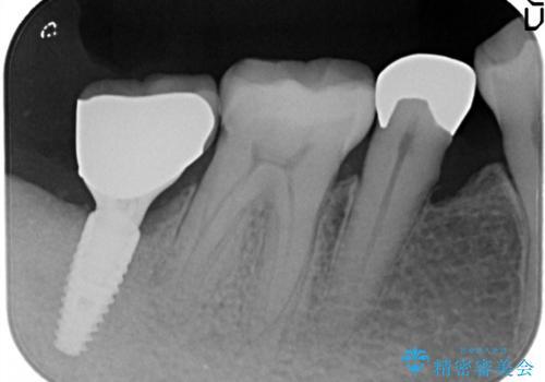 奥歯が痛い。骨増生を併用したインプラントの治療後