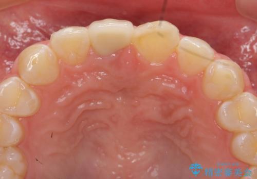 前歯をきれいにしたい ジルコニアクラウンによる審美治療の治療後