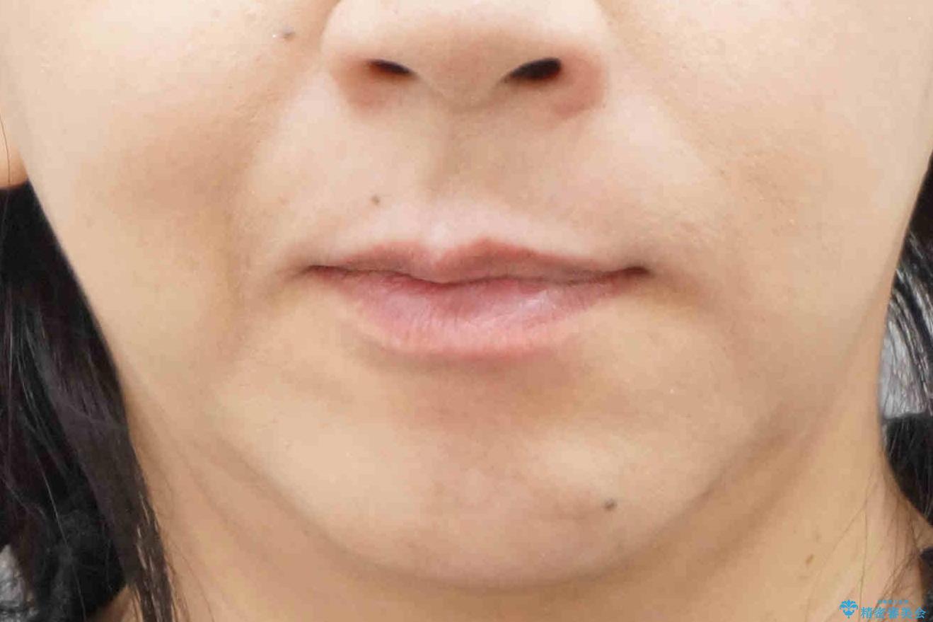 40代女性 前歯の重なり あきらめずに矯正の治療後(顔貌)