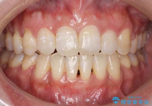 40代女性 前歯の重なり あきらめずに矯正の症例 治療後