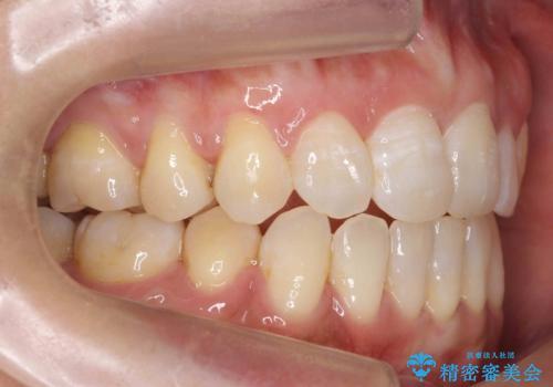 40代女性 前歯の重なり あきらめずに矯正の治療後