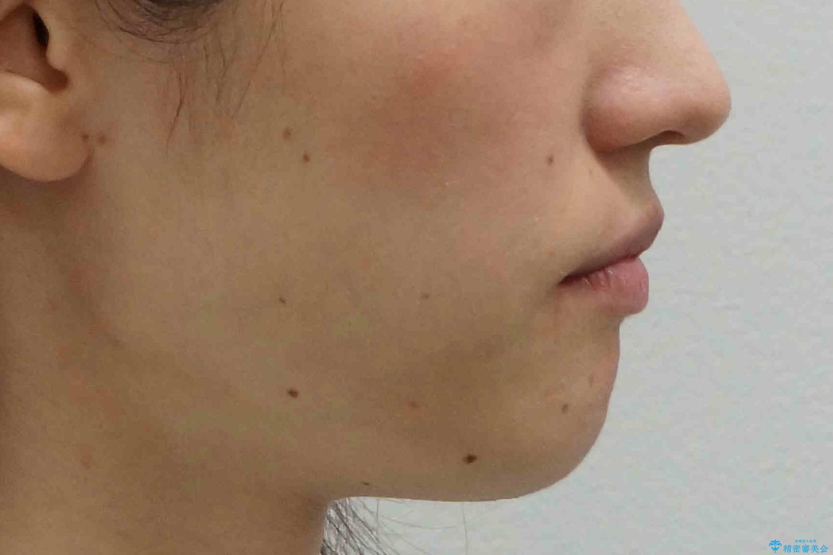 抜かない、削らない矯正 大人も上顎を骨から広げますの治療後(顔貌)