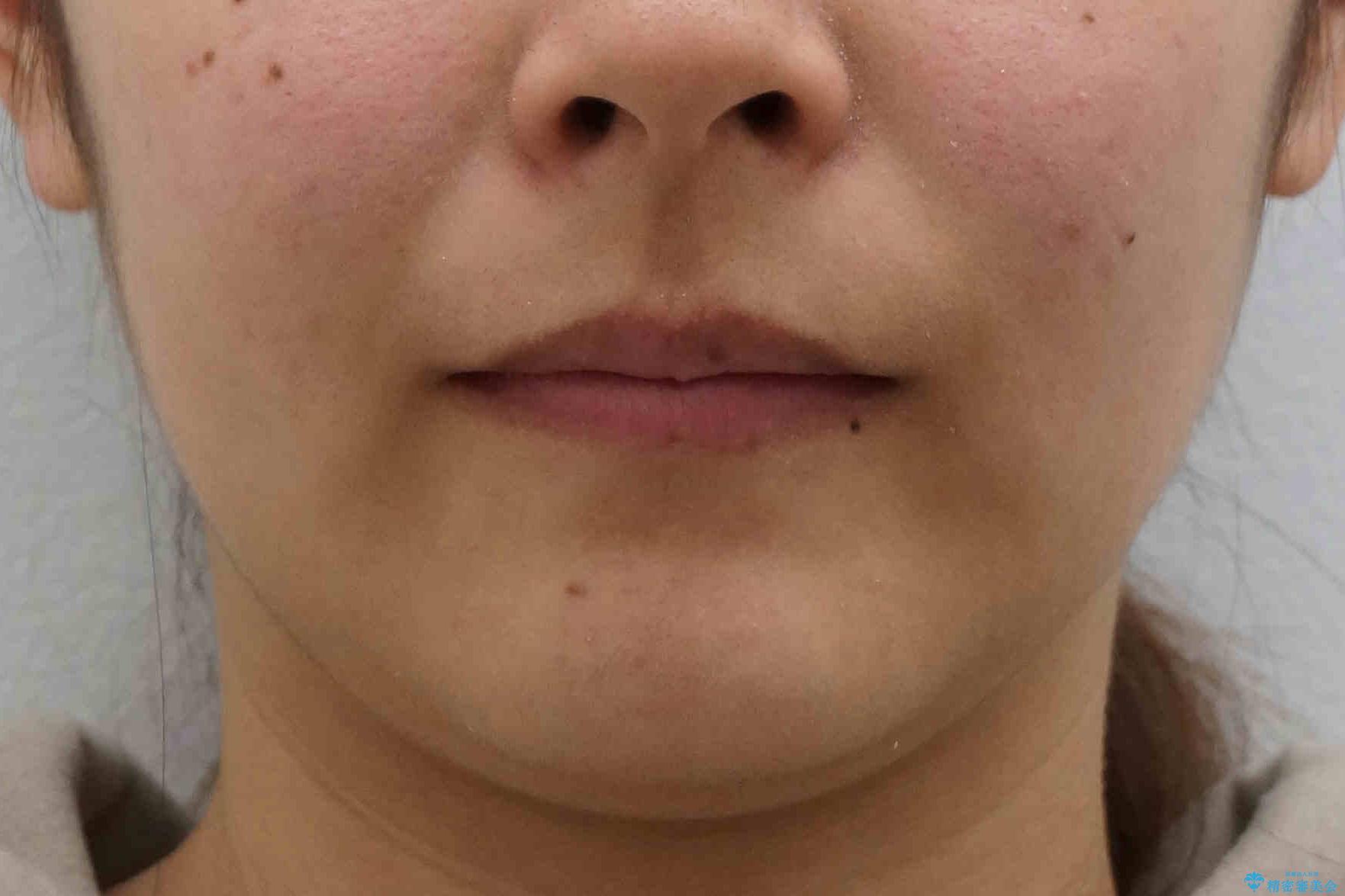 前歯のがたがた 前歯が内側に傾いているの治療後(顔貌)