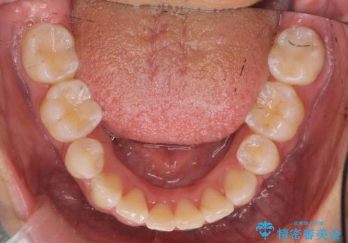 前歯のがたがた 前歯が内側に傾いているの治療後