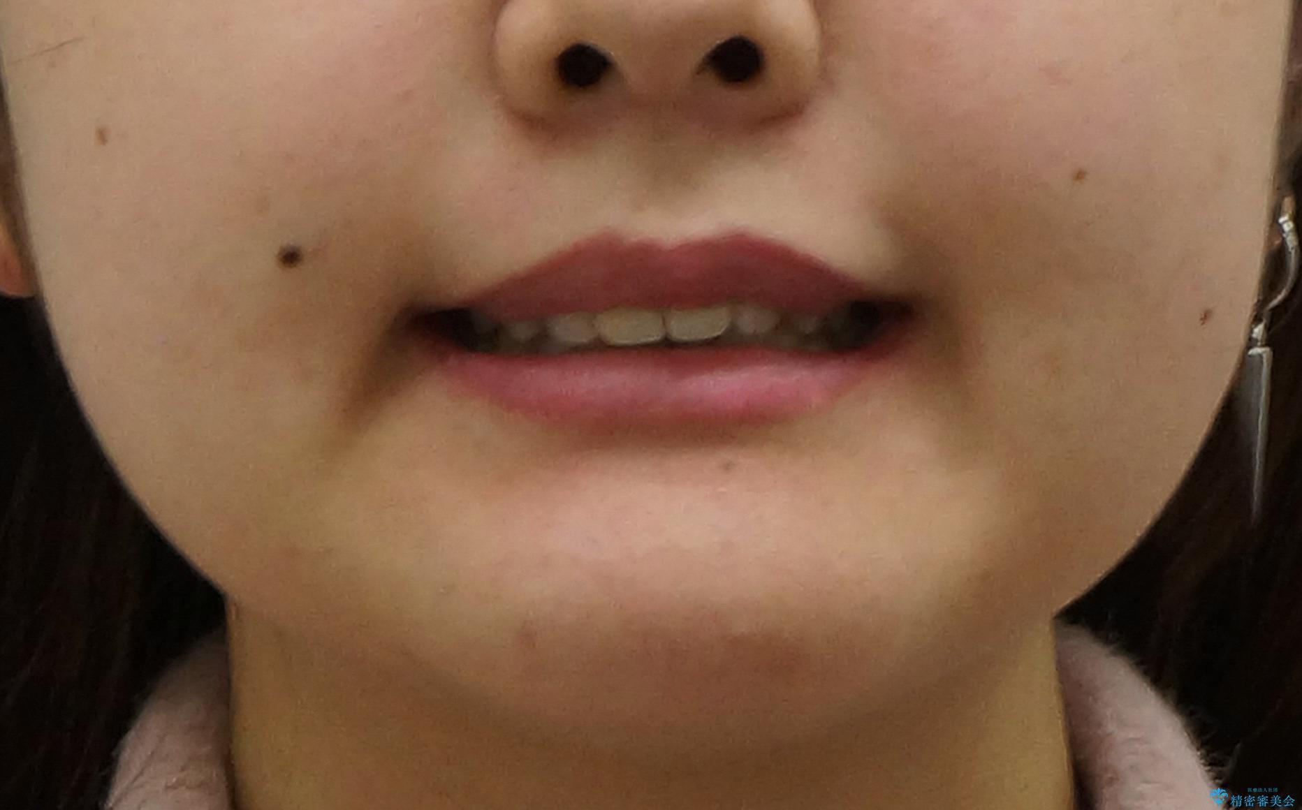 出っ歯をセラミックで治したい の治療後(顔貌)