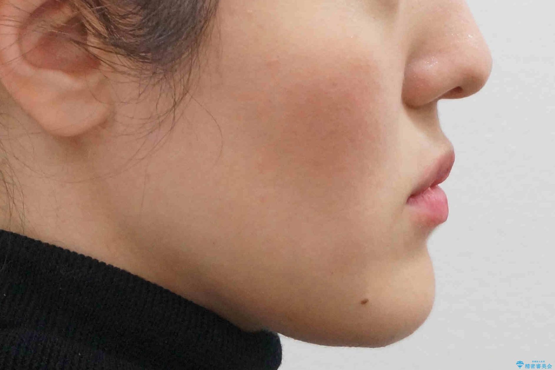 矮小歯 インビザラインとセラミックで美しくの治療後(顔貌)