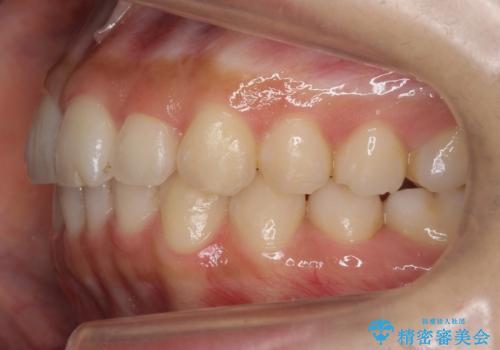 犬歯のねじれ 下の歯のがたがた インビザラインでの治療後
