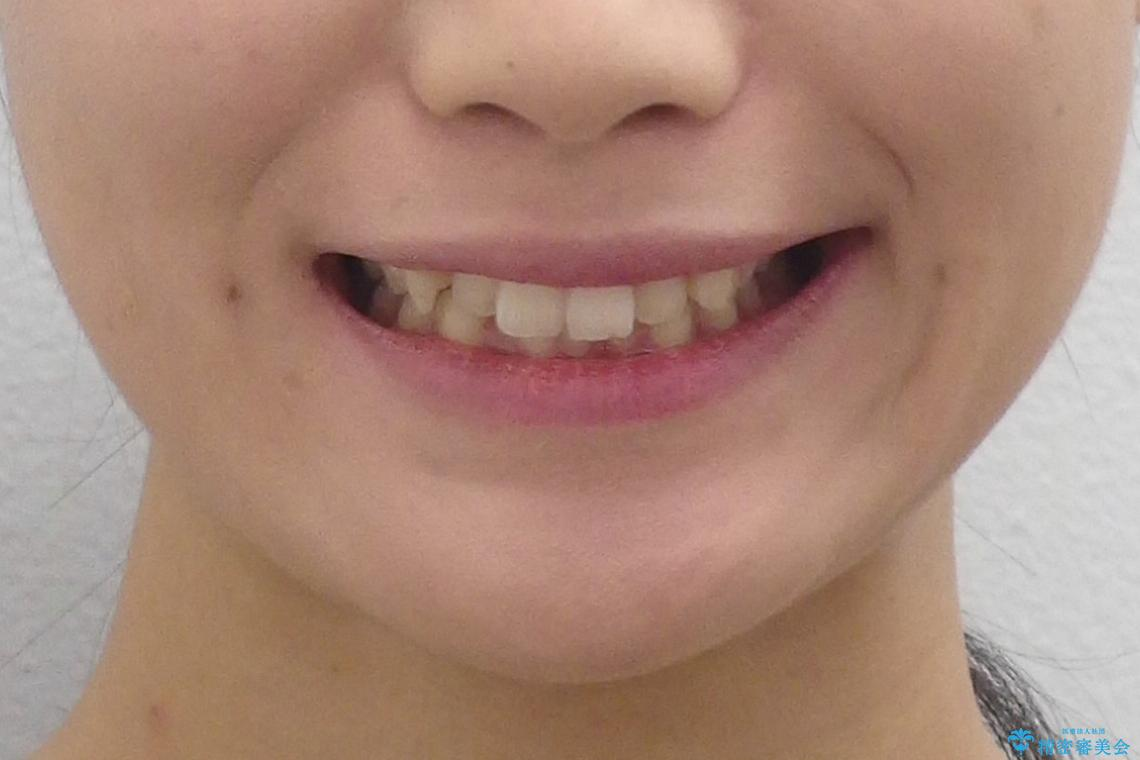 犬歯のねじれ 下の歯のがたがた インビザラインでの治療前(顔貌)