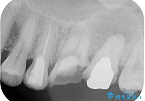 長い間虫歯を放置 奥歯のブリッジ治療の治療前