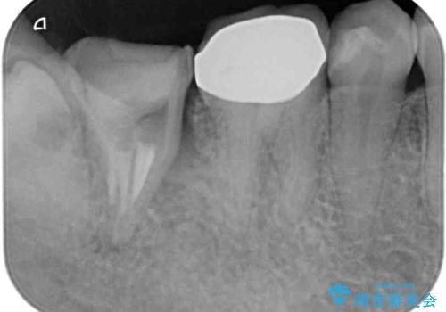 部分矯正を併用した、ストローマンインプラントによる奥歯の咬合回復の治療前