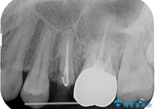 異臭のする歯を抜歯 奥歯のセラミックブリッジ治療の治療前